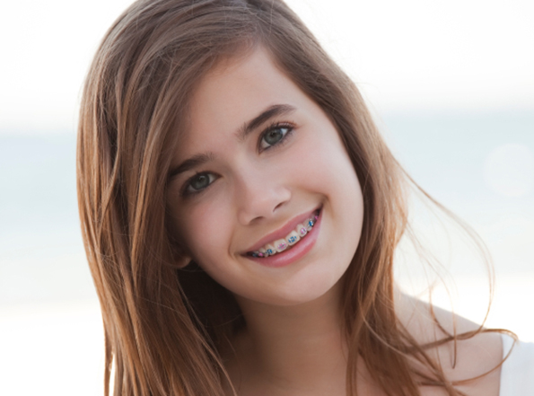Fossum Family Dental Offers Invisalign