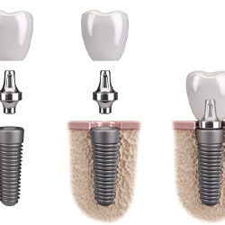 three parts of dental implant