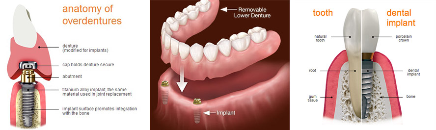 Dental Implants Temple Dentures Fossum Dental Group