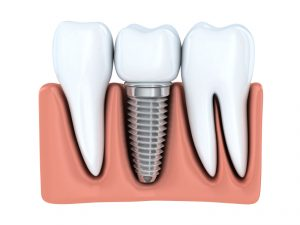 Are you a candidate for dental implants in Temple?