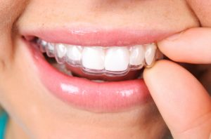 5 essential questions about Invisalign in Temple.