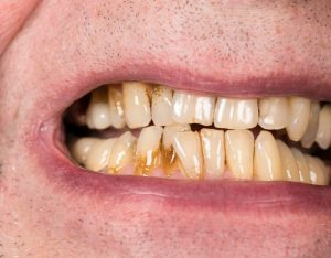 man with yellow teeth gum disease