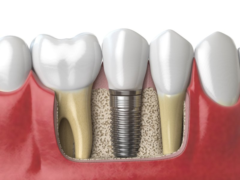 Illustration of dental implants in Temple