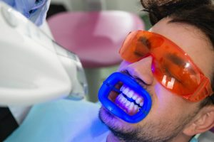 teeth whitening by dentist in Temple