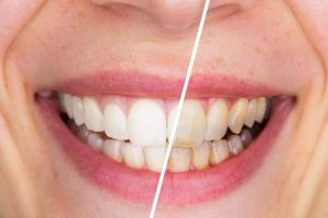 teeth whitening from dentist in Temple